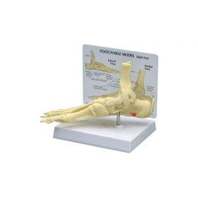 GPI Anatomicals  Foot/Ankle Plantar Fasciitis Model