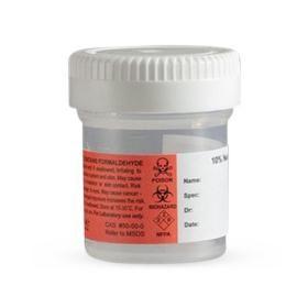 Prefilled Formalin Specimen Container,Inner Seal,15 mL,7.5 mL Fill
