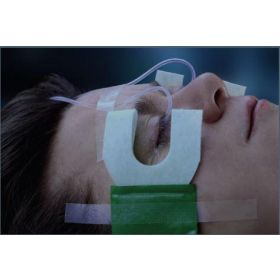 Medi-Duct Fluid Management System for Use with for Use with Morgan medi-Flow Lenses