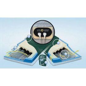 """PressureGuard APM2 Mattress, Foam, Air, 80"""" x 35"""" x 7"""""""